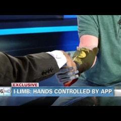 [i-Limb] 이제 앱으로 의수를 조종한다!